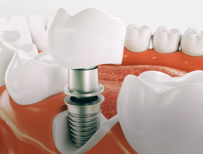 Thousand Oaks Dental Implants